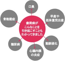 大阪市 阿倍野区 西田辺 えがしら歯科 歯周病ってどんな病気?
