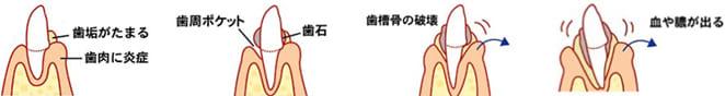 大阪市 阿倍野区 西田辺 えがしら歯科 歯周病の進行