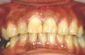 前歯 審美歯科治療 オールセラミック 症例 40代 女性 阿倍野区在住