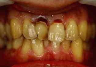 前歯 セラミック 審美 症例 40才代 男性 阿倍野区在住