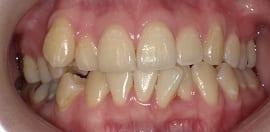 審美歯科治療 ホワイトニング 症例 40代 女性 Y様 阿倍野区在住