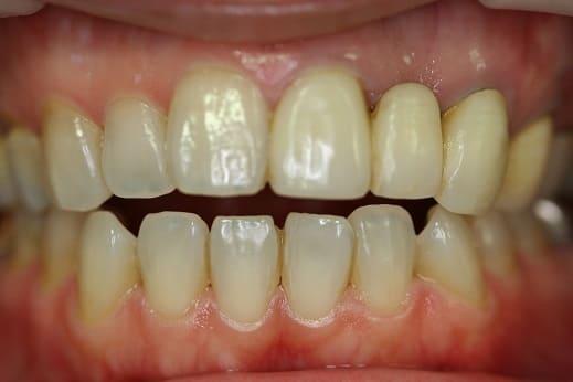 前歯 審美歯科治療 オールセラミックスクラウン ホワイトニング 症例 40代 女性 O様 住吉区在住