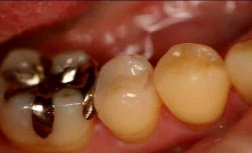 奥歯 審美歯科治療 ハイブリットセラミックスインレー 症例 40代 女性 N様 東住吉区在住