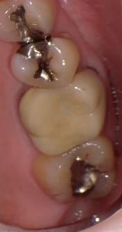 奥歯 審美歯科治療 ハイブリットセラミックスクラウン 症例 60代 女性 H様 阿倍野区在住