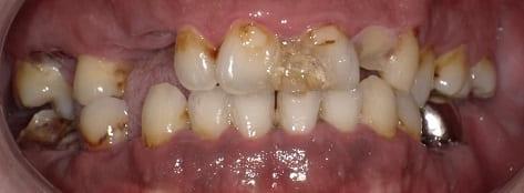 奥歯 前歯 セラミックスクラウン 審美 症例 40才代 男性 阿倍野区在住