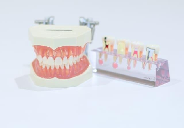 歯医者の歯周病治療