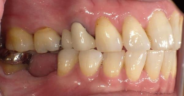 奥歯 インプラント治療 症例 60代 女性 M様 阿倍野区在住