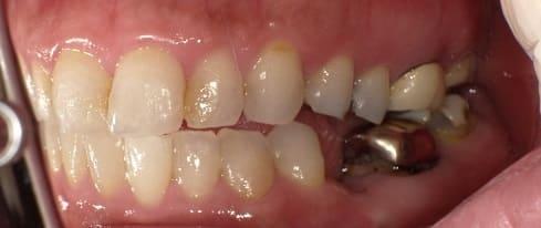 奥歯 インプラント治療 症例 40代 女性 Y様 住吉区在住