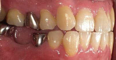 奥歯 インプラント治療 症例 30代 男性 K様 住吉区在住
