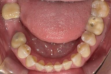 奥歯 インプラント治療 症例 30代 女性 T様 東住吉区在住