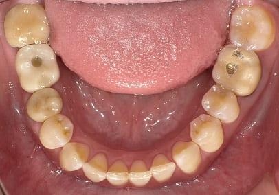 治療後下顎