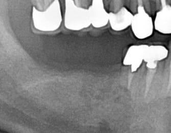 奥歯 インプラント治療 症例 50代 男性 Y様 阿倍野区在住