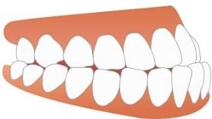 下顎前突のイラスト