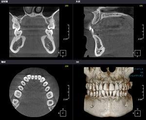 インプラント治療のCT画像