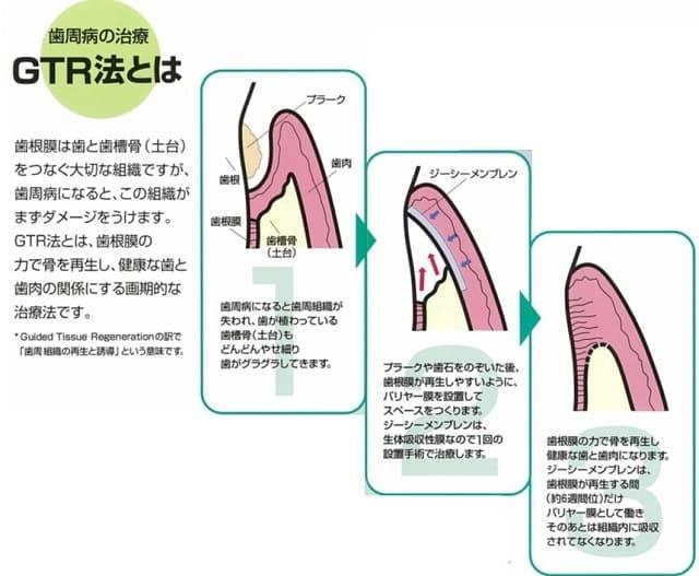 歯周病治療GTR法