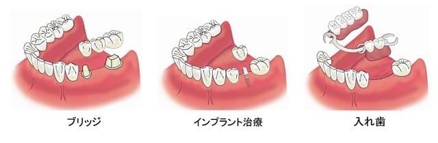 ブリッジ・インプラント・入れ歯の比較