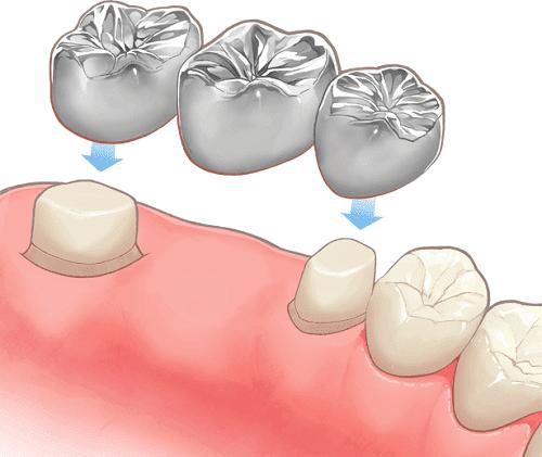 保険治療は銀歯