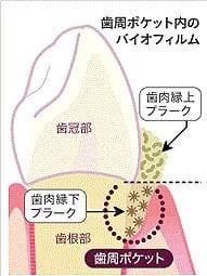 歯周ポケットとプラーク(歯垢)