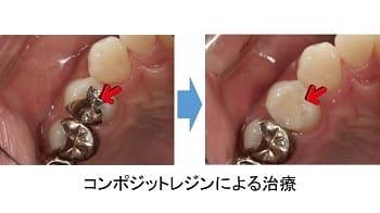 銀の詰め物とコンポジットレジンの修復の比較