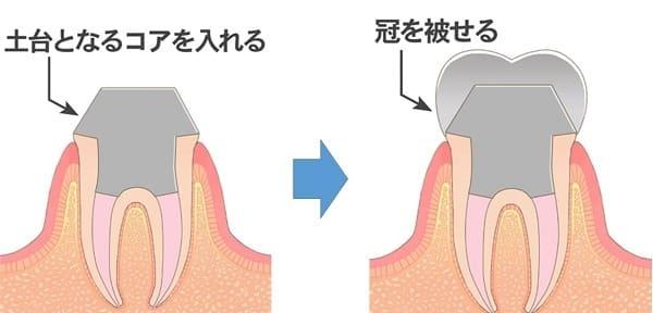 歯に被せ物を被せる