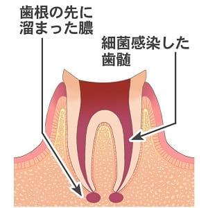 歯の根が化膿する