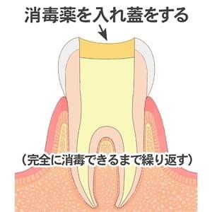 歯の中を消毒する