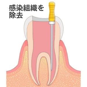 歯の神経を抜く