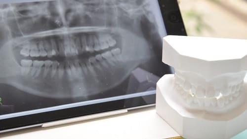 歯科口腔外科の治療範囲