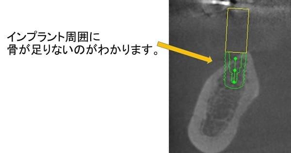 インプラント治療のシュミレーション画像1