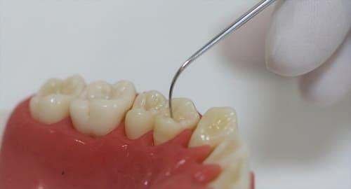 探針での虫歯検査