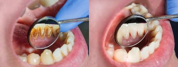 歯のクリーニング前後の画像