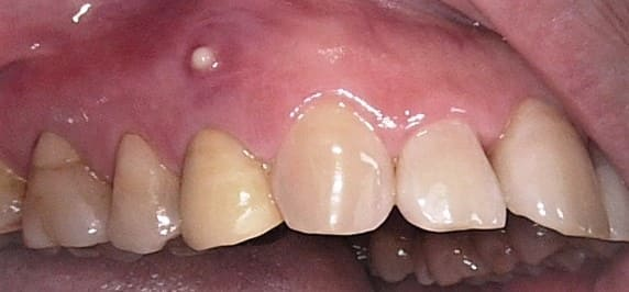 歯茎の上の方の腫れ