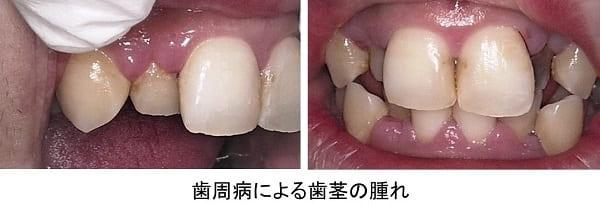 歯周病による歯肉の腫れ