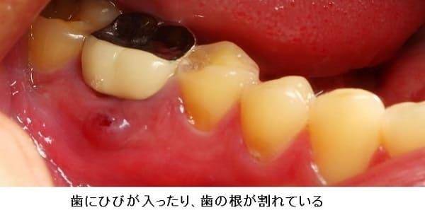歯のひびによる歯茎の腫れ