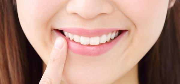 プロバイオティクスと虫歯や歯周病の予防