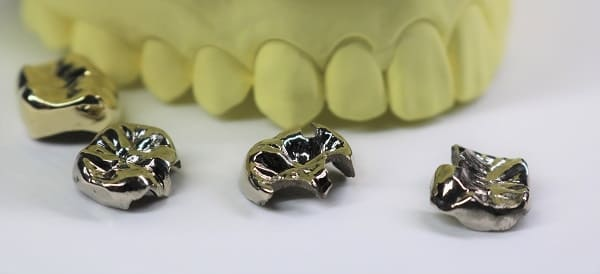 歯科用金属