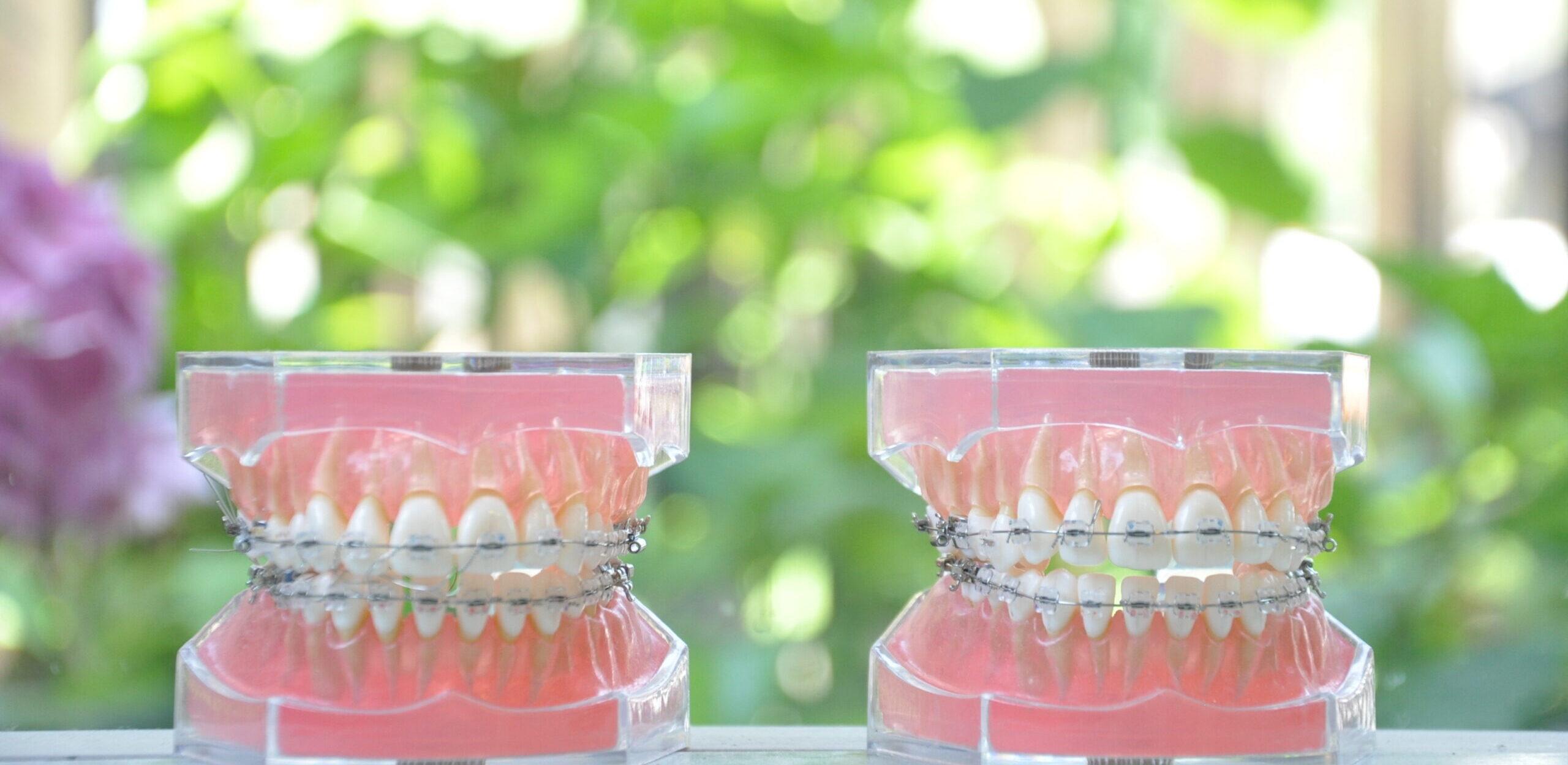 阿倍野区西田辺の歯医者 歯列矯正の費用