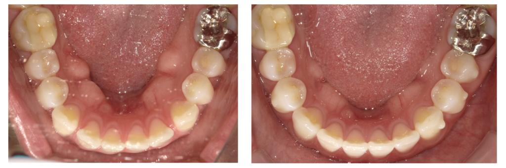 インビサライン治療のビフォーアフター下顎