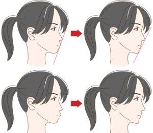 大阪市阿倍野区西田辺 歯医者 横顔のイラストにEラインを表記した画像