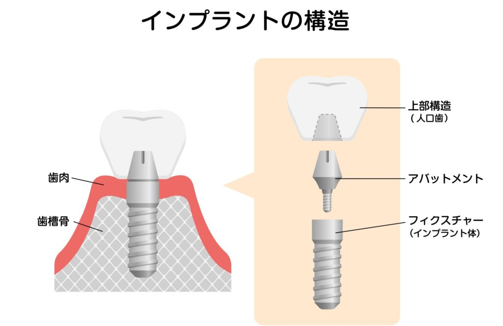 阿倍野区西田辺 インプラント構造