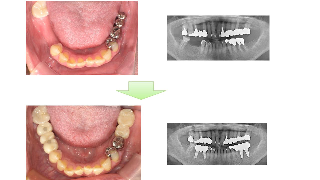 奥歯 インプラント治療 症例 60才代 女性 H様 阿倍野区 在住